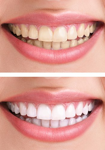 Blanchiment Avant Et Apres Sourire - Eclinic Odontologia