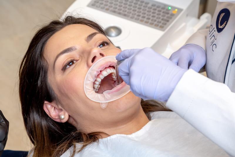 Perio1 (1) - Eclinic - A sua clínica odontológica