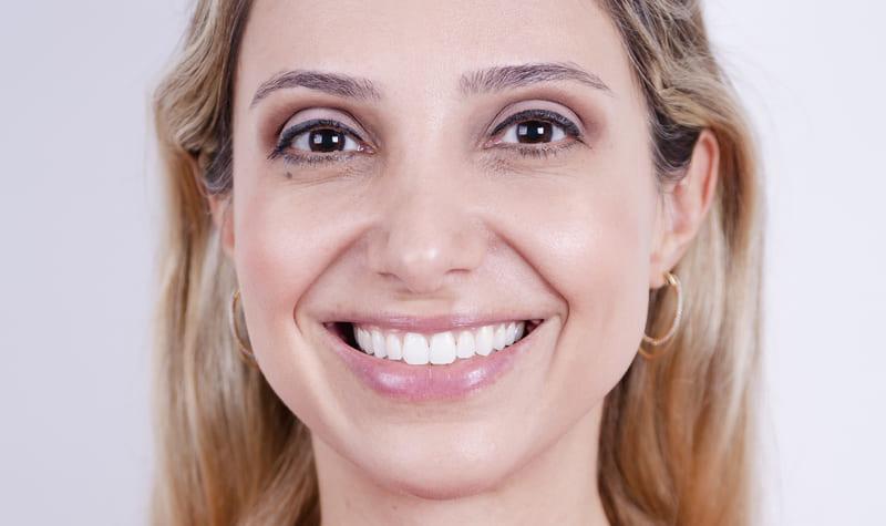 Procedimento 1 (9) - Eclinic - A sua clínica odontológica
